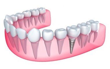 מה הם טיפולי השיניים אסתטיים החדשניים שכדאי להכיר?
